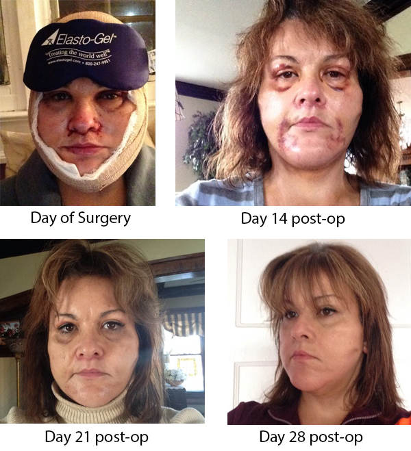 Winslow facial plastic surgery