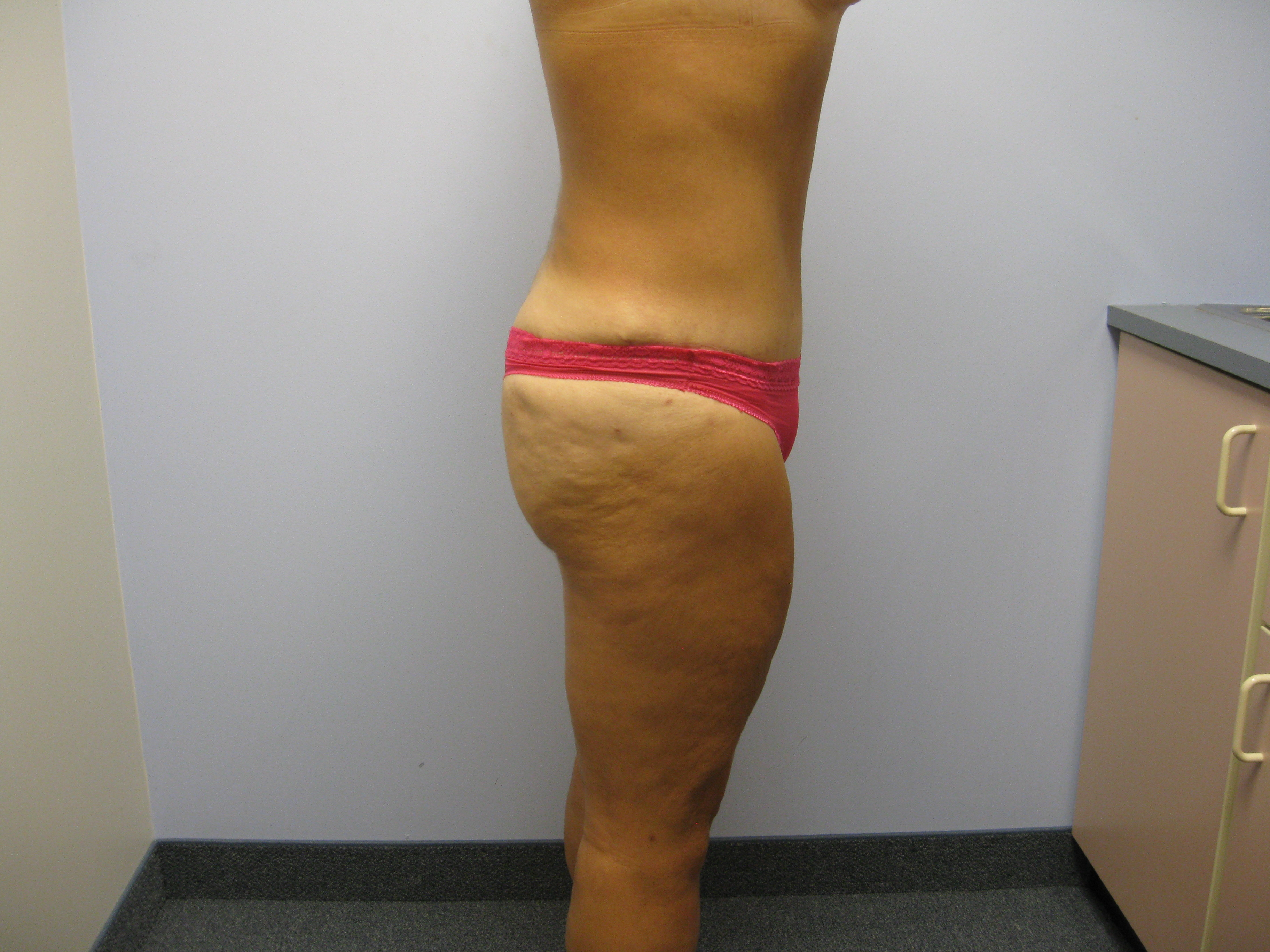 Pubic Mound Tummy Tuck After Bariatric Surgery My