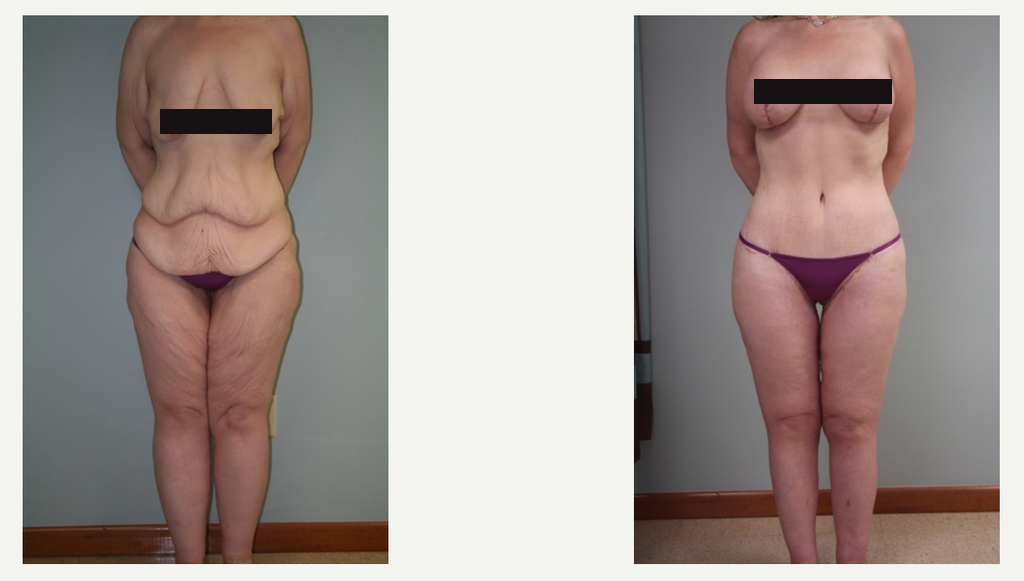 Breast Lift & Augmentation After 100 lb Weight Loss