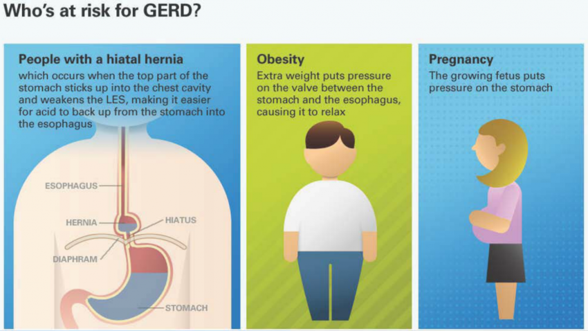 Successful GERD Treatment: Gastric Bypass | My Bariatric Life